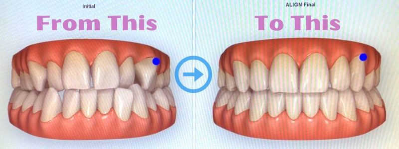 Invisalign Teeth Straightening